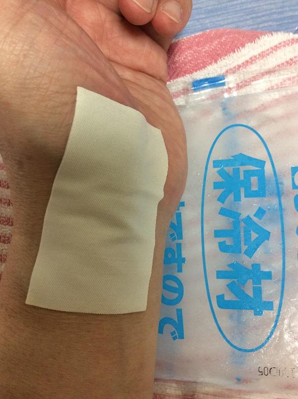 保冷剤で患部を冷やす