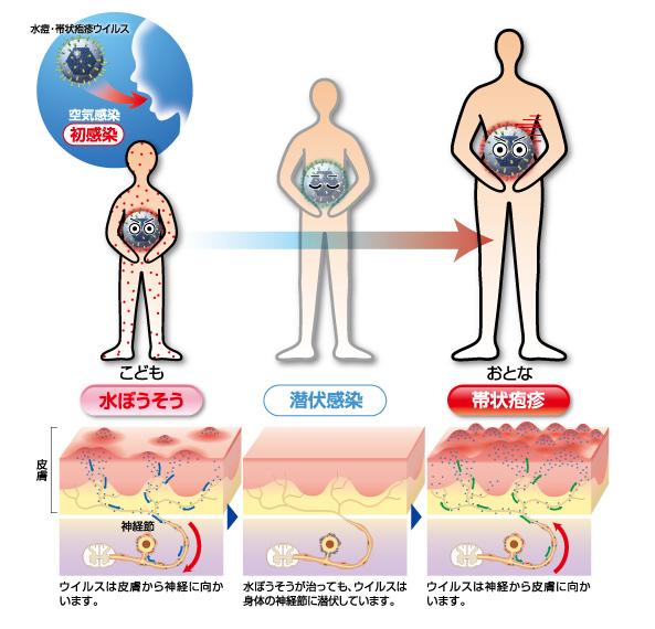 水ぼうそうと帯状疱疹の関係