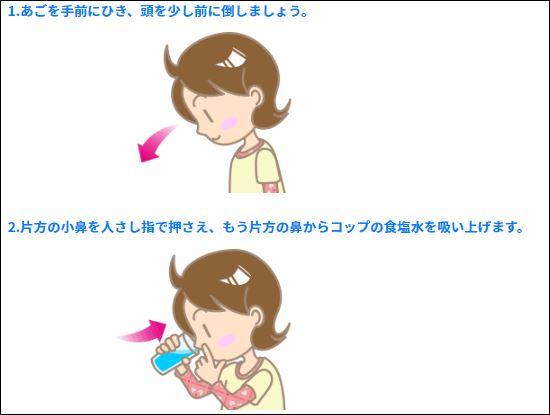 引用元:痛くない!鼻うがいの正しいやり方 http://park-sc.paa.jp/park2/dc/040/chapter2-02/